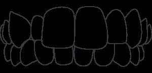 Dental Aligners For Cross Bite