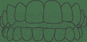 Dental Aligners For Open Bite