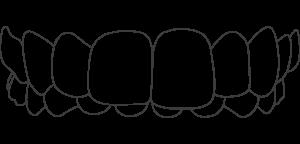 Dental Aligners For Over Bite