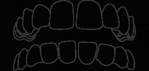 Gap Teeth Aligners