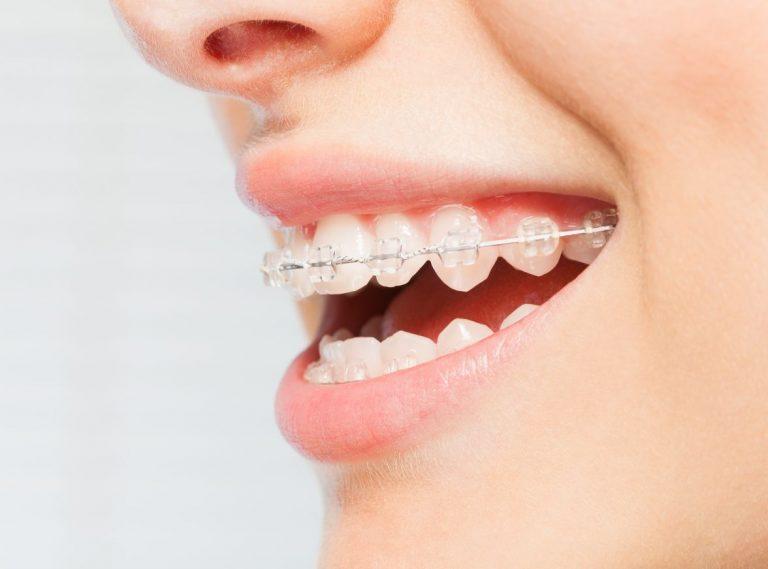 Dental Braces Southbank Dentistry SE1