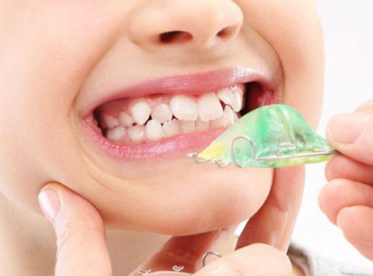 Orhodontics for Kids