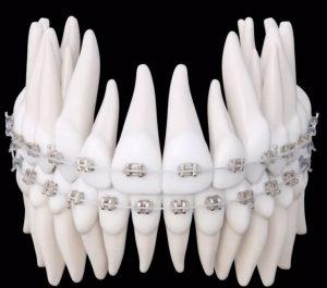 Iconix Orthdontic Aligners